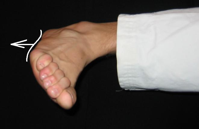 Болит внешняя сторона стопы